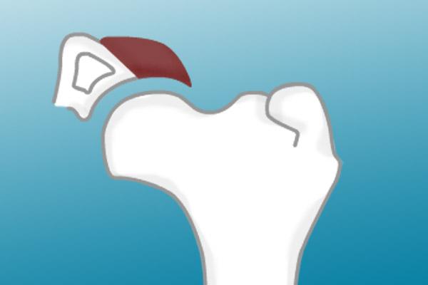 Tratamento cirurgico da displasia da anca